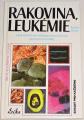 Breuss Rudolf -  Rakovina, leukémie